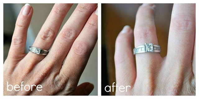 Before and After Ring