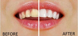 3 Easy and Inexpensive Ways To Whiten Your Teeth At Home Conditions