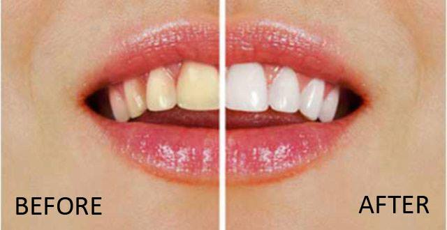 3 Easy And Inexpensive Ways To Whiten Your Teeth At Home In Just 3